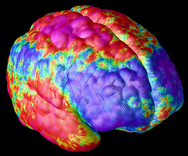 Most People are Flat Wrong about Schizophrenia